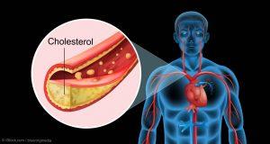 hypercholesterolemia
