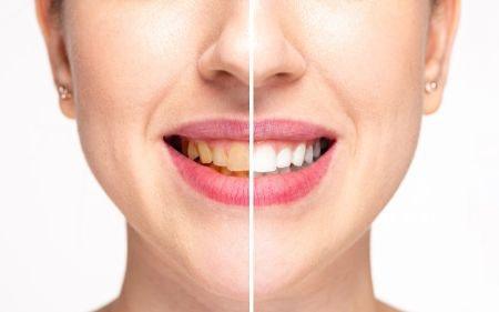 whitening toothpaste UK
